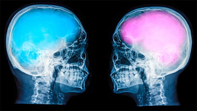 Интеллектуальное преимущество мужчин перед женщинами – миф, доказали ученые
